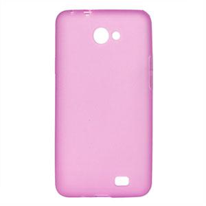 Billede af Samsung Galaxy R TPU cover fra inCover - pink
