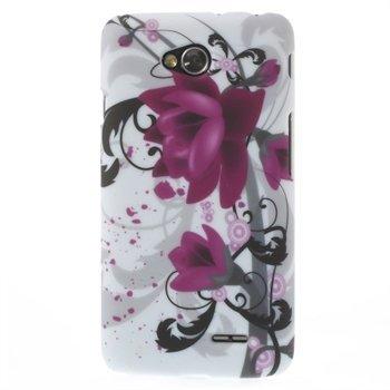 Image of LG L70 inCover Design Plastik Cover - Lotus Flower